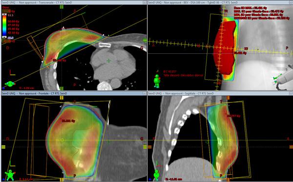 Dosimetrie 3d radiothérapie CSJ Saint-Doulchard