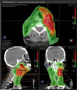 Dosimetrie vmat radiothérapie CSJ Saint-Doulchard